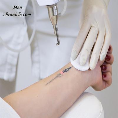Laser Tattoo Removal Process