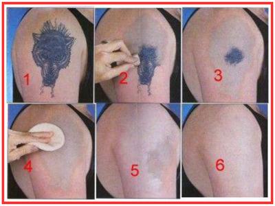 Salt Scrub to Get Rid of Permanent Tattoos